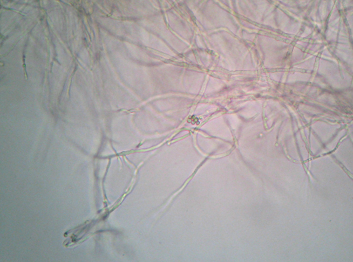 Wet-mount photomicrograph showing mold mycelia and a mass that kind of looks like large spore cases or something